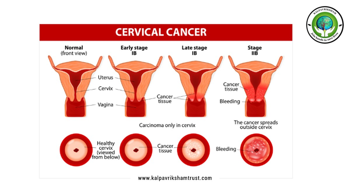 Cervical Cancer in chennai